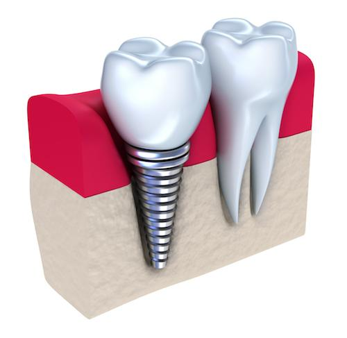 close up of dental implant model l dental implants 85253