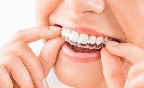 Close up of woman putting in clear aligner l 85253 dentist