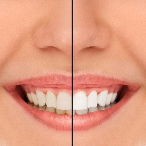 Example of teeth whitening results at Arcadia Dentistry